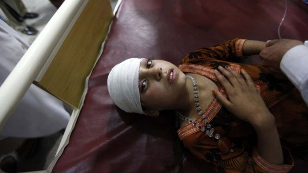 This girl was among those being treated at a hospital in Peshawar, in Pakistan